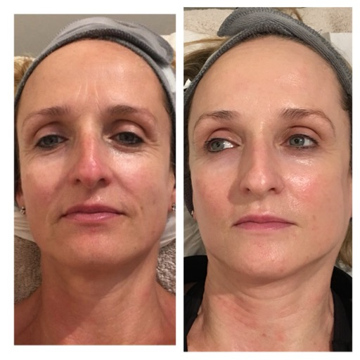 Before and After Image 1 - Environ, Skinpen, A-lift