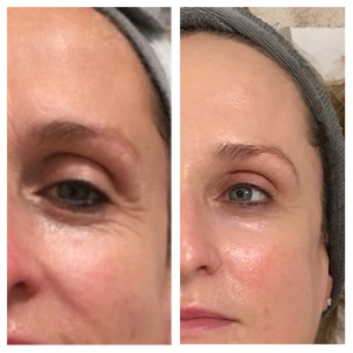 Before and After Image 2 - Environ, Skinpen, A-lift