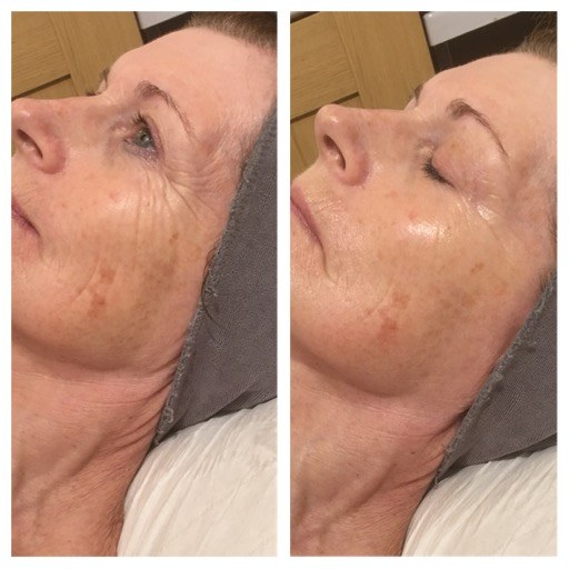 Before & After Image - Environ Collagen with A-Lift