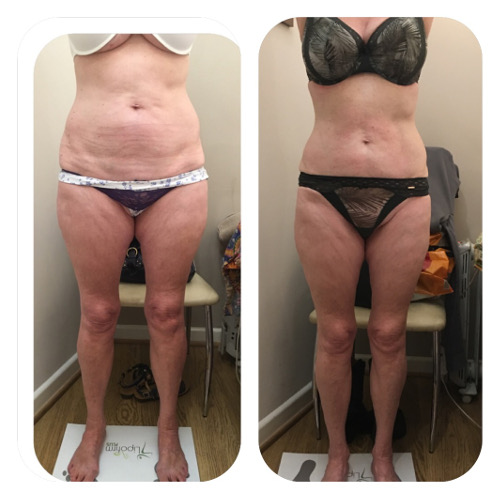 Lipofirm Body Before and After 1 Image