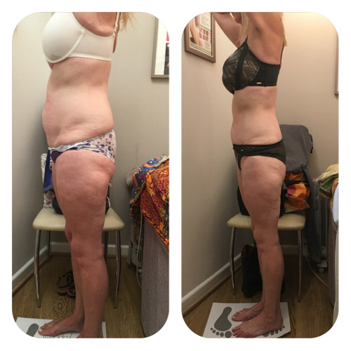 Lipofirm Body Before and After 2 Image