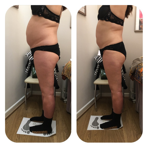 Lipofirm Body Before and After 3 Image