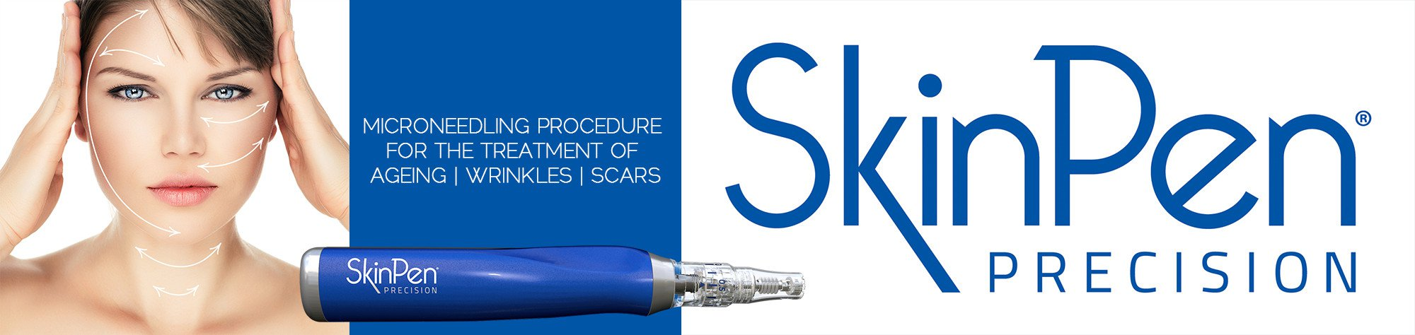 Skin Pen Treatments