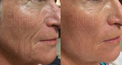SkinPen Before and After
