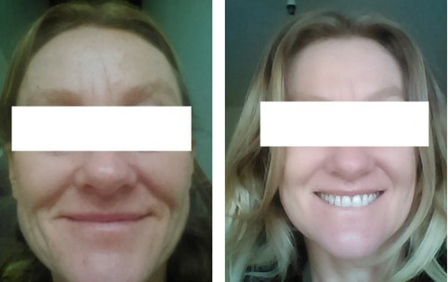 SkinPen before and after photos