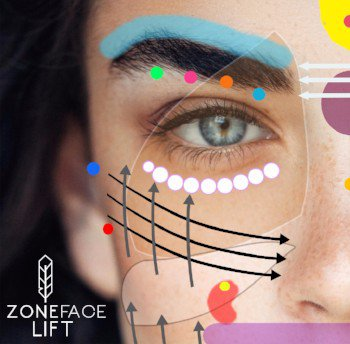 Zone Face Lift Banner